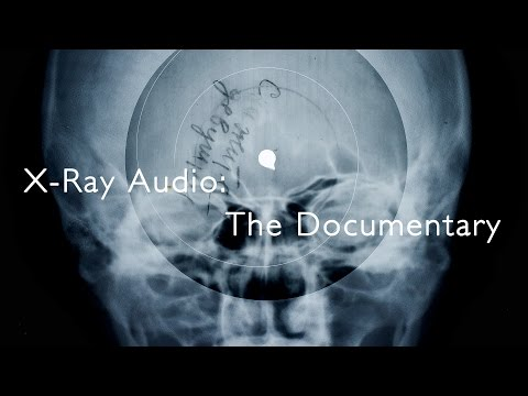 X-Ray Audio: The Documentary